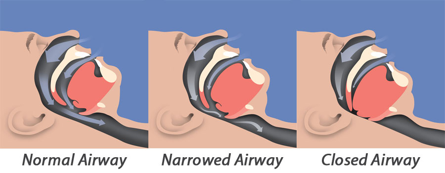sleep-apnea-illustration